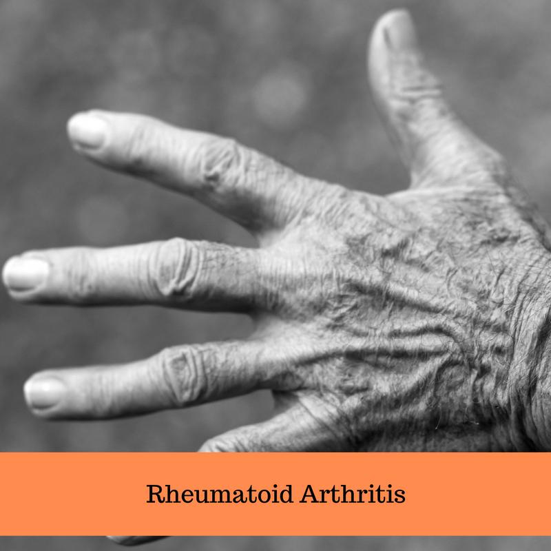 Naturally Relieving Rheumatoid Arthritis Symptoms